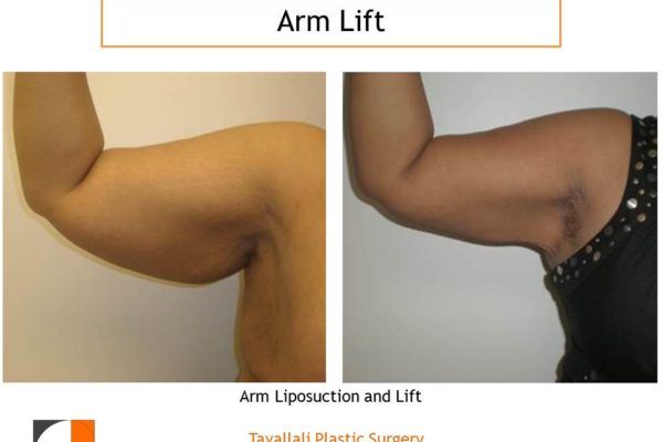 Arm Lift results with liposuction and axillary scar