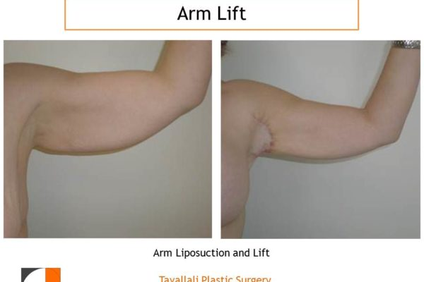 Arm Lift and Liposuction before after