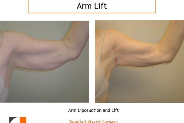 Arm Liposuction and Lift early result