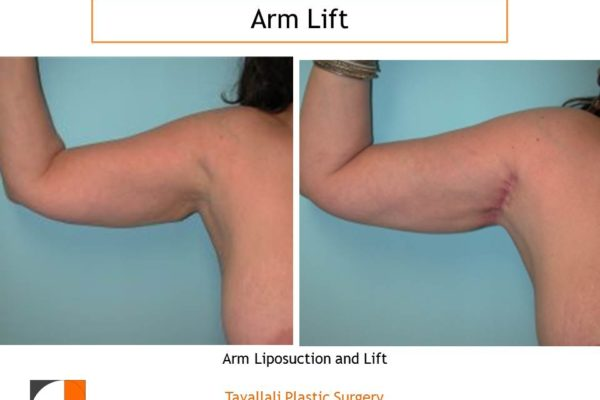 Arm Lift Before & After with axillary scar