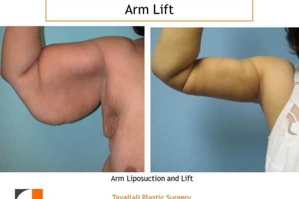 Arm Lift Plastic Surgery before after result