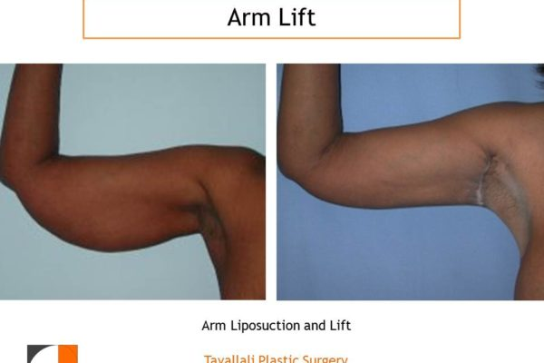 Before and After Arm Lift with scar in axilla