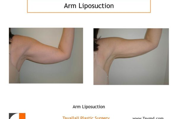Arm liposuction result before & after