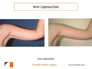 Arm liposuction result in thin woman