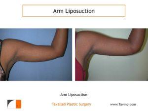 Arm liposuction result