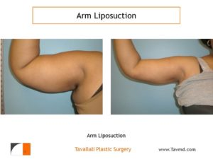 liposuction arms before & after photos Vienna VA