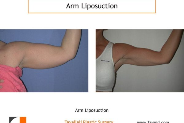 Lipo of arms before after surgery