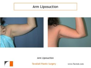 liposuction surgery arms before after Fairfax county VA