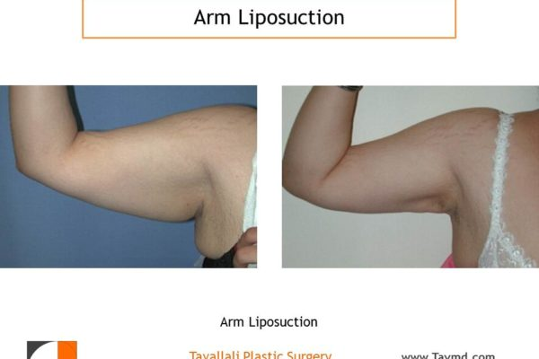 liposuction surgery arms before after Tyson's corner VA
