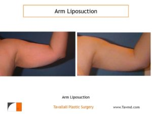 liposuction surgery arms before after Virginia