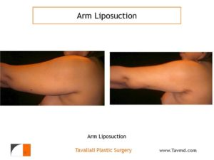 side view of liposuction surgery arms before after