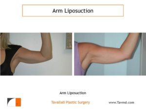 liposuction surgery arms before after woman