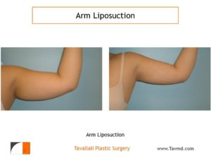 lipo surgery arms before after
