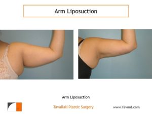lipo arms before after