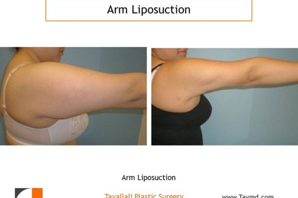 liposuction surgery arms before after side view