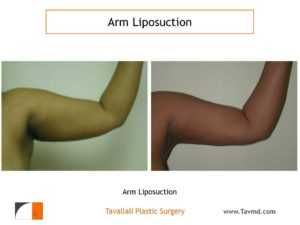 liposuction surgery arms before after front view