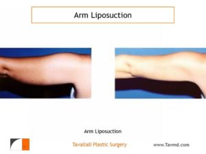 back view Arm liposuction surgery result