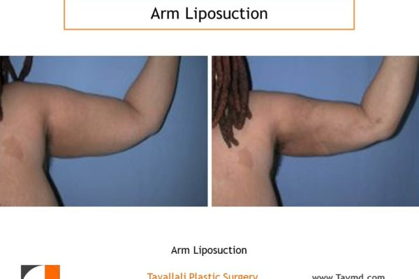 Arm liposuction surgery result after 2 weeks