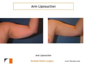 Arm liposuction surgery result before and after