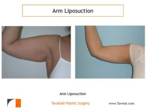 Arm liposuction surgery result Virginia