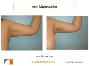 Arm liposuction surgery result