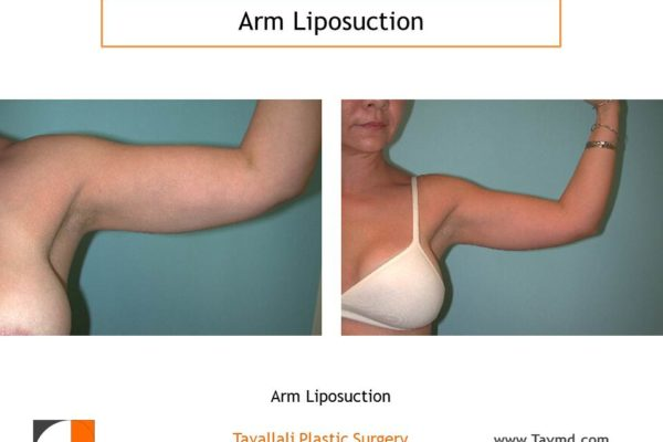 Arm liposuction result thin woman