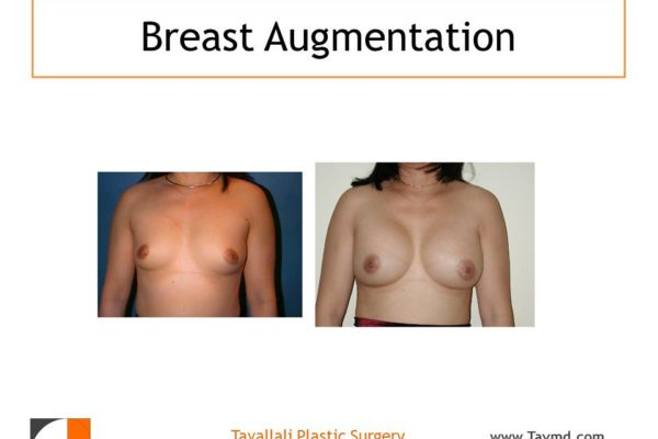 Before & after breast augmentation surgery