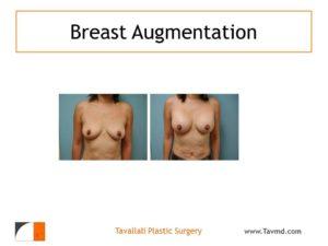 Breast enlargement with saline implants