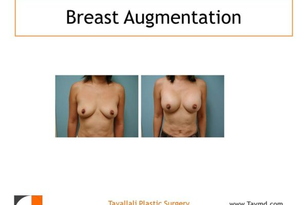 Breast enlargement with saline implants