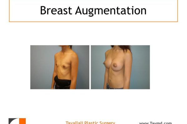 Oblique view Breast enlargement with saline implants