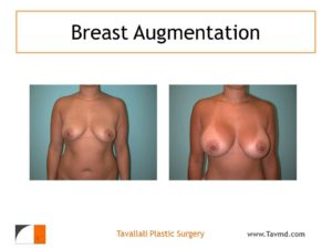Result of woman with large breast enlargement