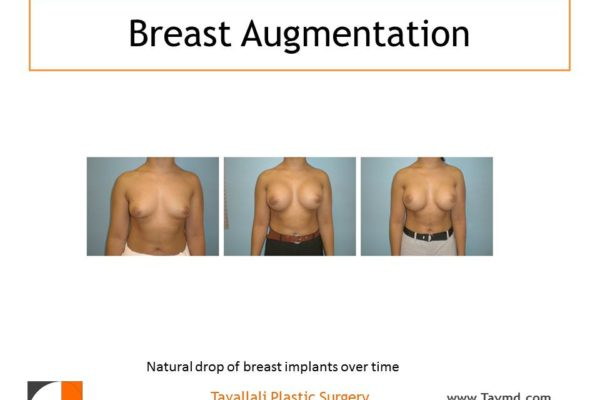 Stages of breast implants falling