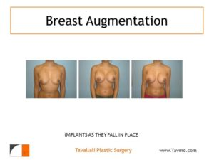 Breast implants falling into position over 4 months