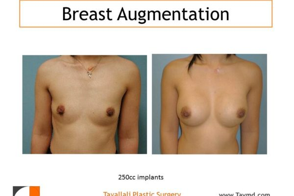 Before after breast augmentation surgery
