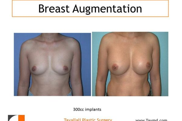 Breast enlargement with silicone implants