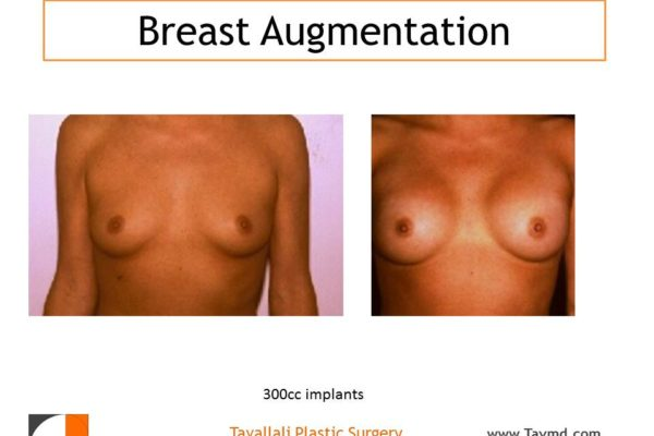 Silicone implants in breasts