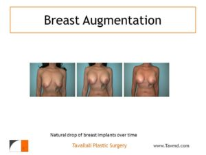 Early and late results of breast implants
