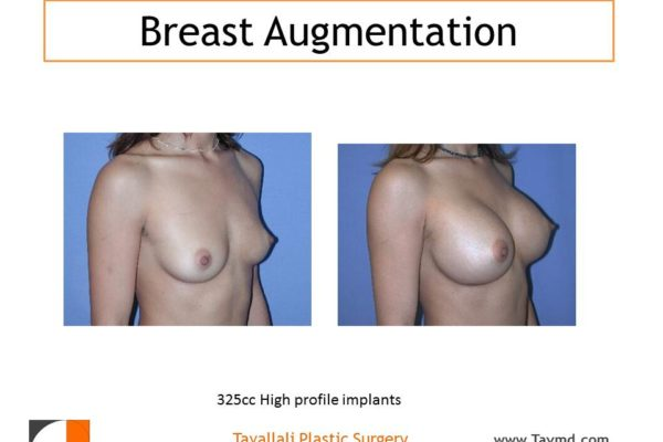 325 cc saline breast implants before and after