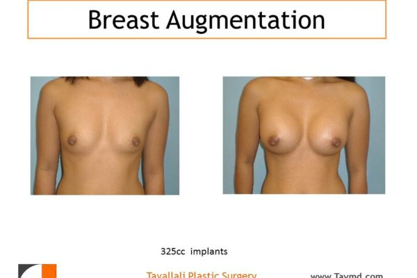 325 cc saline breast implant augmentation before and after