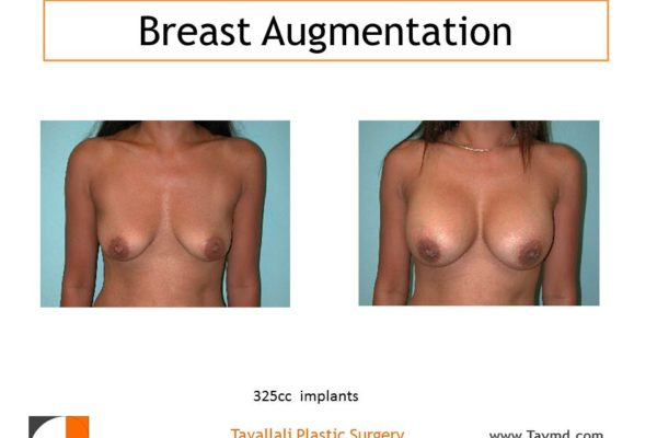 325 cc saline breast implant enlargement before and after