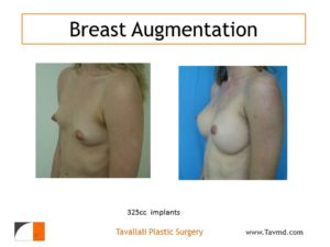 325 cc silicone breast implant enlargement before and after