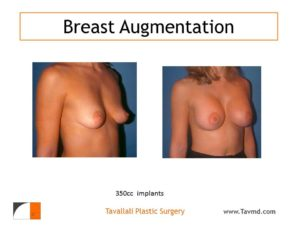 Breast augmentation with 350 cc implants before after