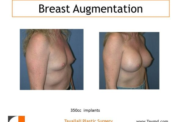 350 cc breast implants before after