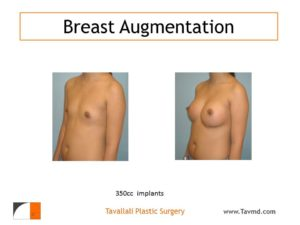 Breast augmentation with 350 cc saline implants in woman with flat chest