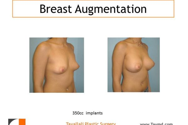 Breast enlargement with 350 cc implants