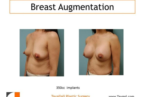 350cc implants for breast enlargement