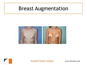 Result of woman with small breast enlargement