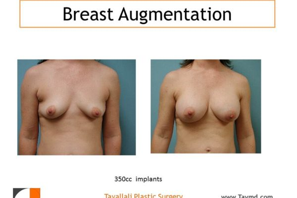 Breast augmentation in woman with 350cc implants of saline
