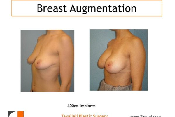 400 cc breast implants