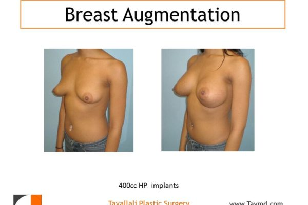 400 cc High profile breast enlargement